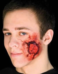 Open Wound Prosthetic