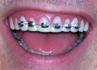 Teeth - Brace Face