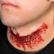 Slit Throat Prostetic