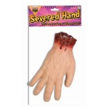 Hand Severed